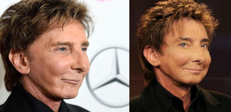 barry-manilow-top-most-worst-examples-of-plastic-surgery-2017