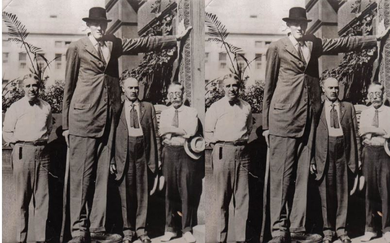 Bernard Coyne Top 10 Tallest People in History 2017
