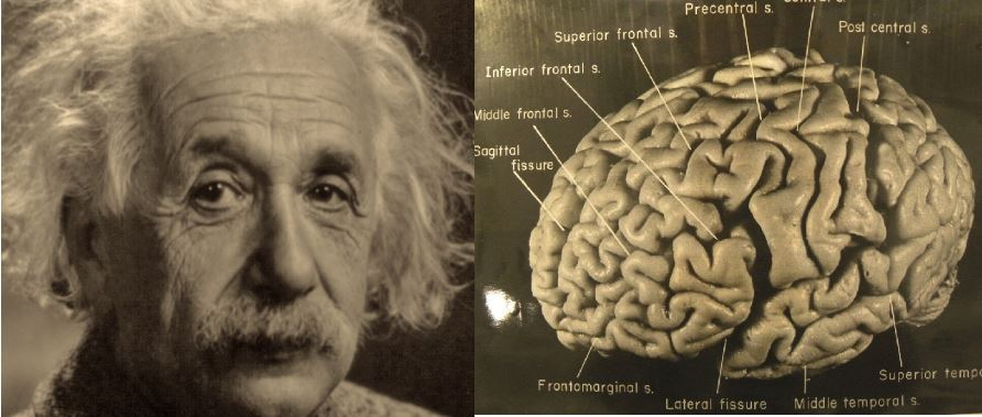 brain-was-physically-different-top-most-surprising-facts-about-albert-einstein-2017