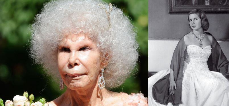 duchess-of-alba-top-most-popular-worst-examples-of-plastic-surgery-2018