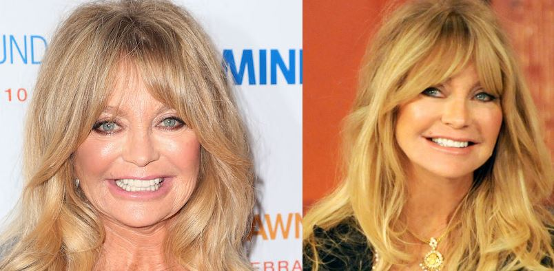 goldie-hawn-top-famous-worst-examples-of-plastic-surgery-2019