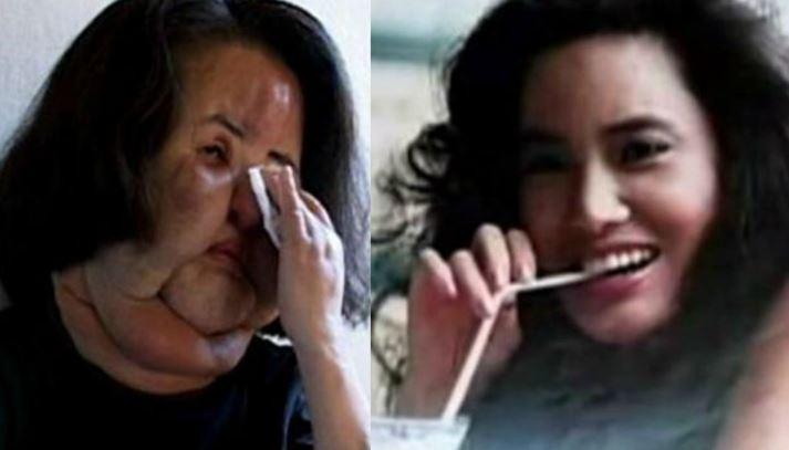 Hang Mioku Top Popular Worst Examples of Plastic Surgery 2019