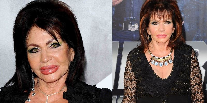 Jackie Stallone Top 10 Worst Examples of Plastic Surgery