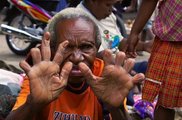 finger-cutting-of-dani-tribe