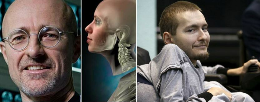 surgeon-plans-first-human-head-transplant-in-2017